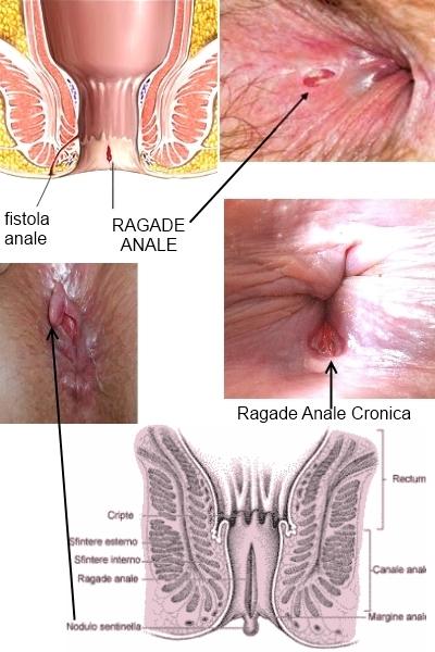 Trombosi di gemorroidalny a donne incinte