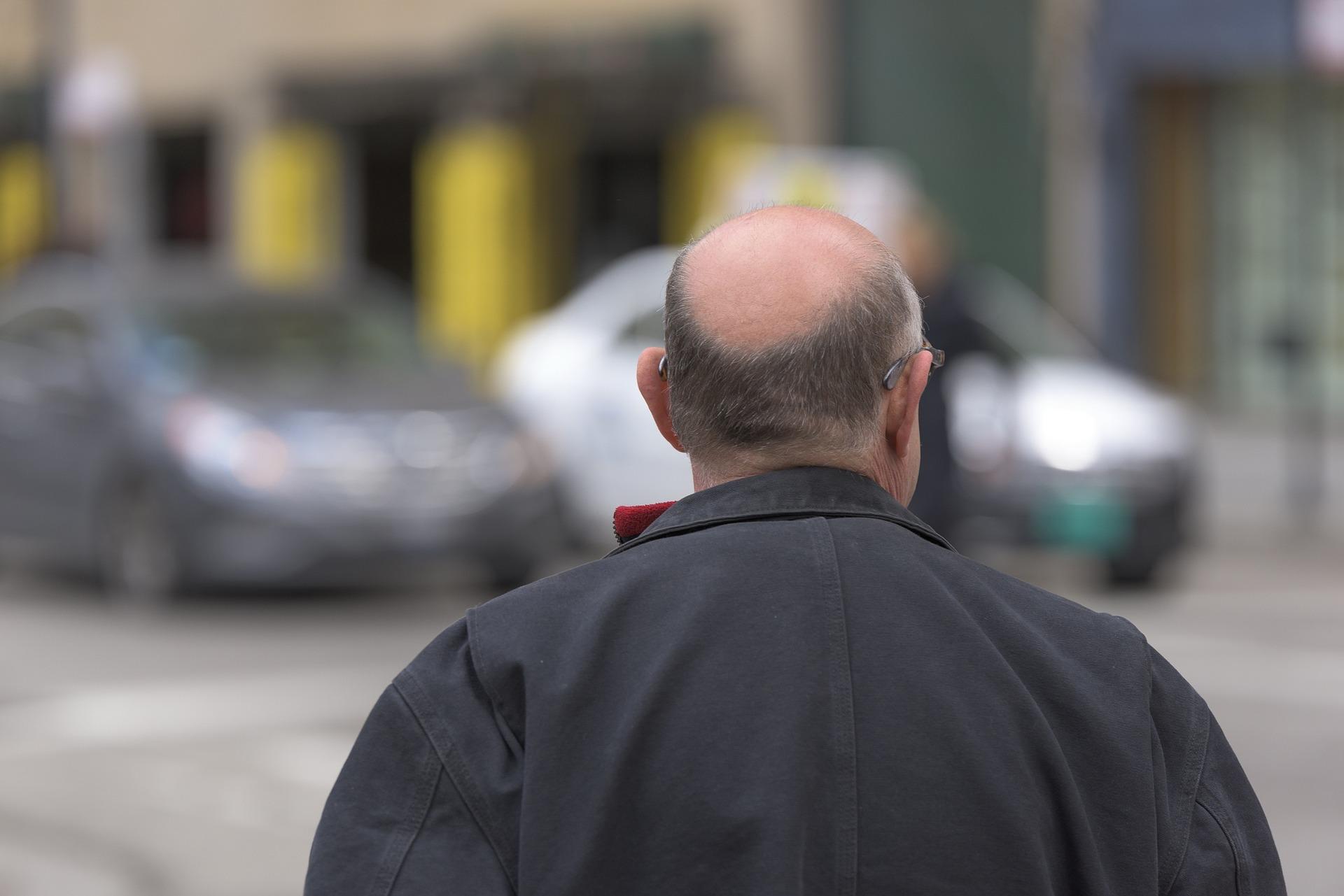 finasteride galenica per l'alopecia androgenica